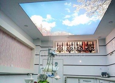 Матовый натяжной потолок с изображением неба НП-1010
